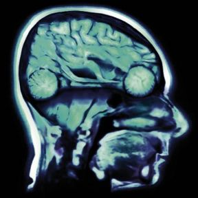 NASCAR and Neuroimaging