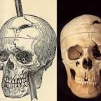 The Biggest Myth about Phineas Gage