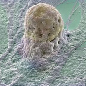 Our Cells Replace Themselves, Why Don't They Mutate? Why Don't We Individually Evolve?