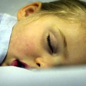 Prevent Childhood Obesity: Put Your Kids to Bed Early