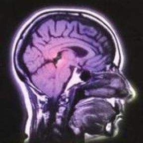 All about Brain Scans