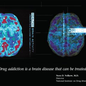 An Addicted Brain Is a Diseased, Not Flawed, Brain