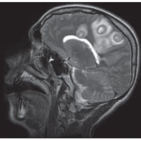 Festering Brain Infection--Piercing the Illusion of Safety