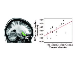 Brain Scan Can Reveal How Much School Work You've Done