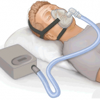 Medicine Instead Of CPAP For Obstructive Sleep Apnea?
