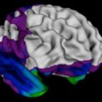 Unexpected sex differences in brain development