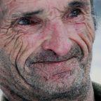 Aging: Is It Treatable?