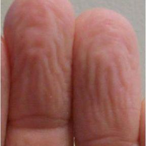 Are Pruney Fingers Human Rain Treads?