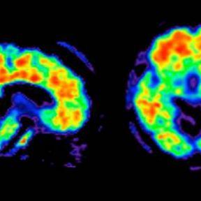 Alzheimer's Disease: What's Ahead