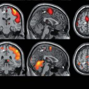 Brain Mapping Does Not Reveal What Turns a Woman On