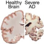A Bold New Experimental Treatment for Alzheimer's Dementia