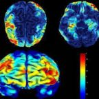 Medications, Therapy, Exercise in Treating Depression...All Remodel the Brain