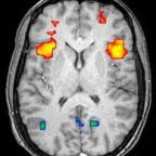 Flaws in Neuroimaging Studies Are Just the Tip of the Iceberg