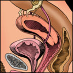 A Tipped Uterus and Intercourse Positions
