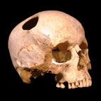 "Trepanated skull of a woman, photo by ""Rama"""